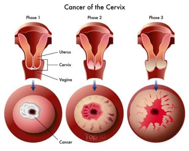 Signs of cervical cancer 10 What Are